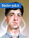 دکتر رضا ابراهیمی راد