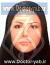 دکتر هانیه نادری